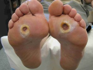 How To Prevent The Onset Of Diabetic Foot Ulcers